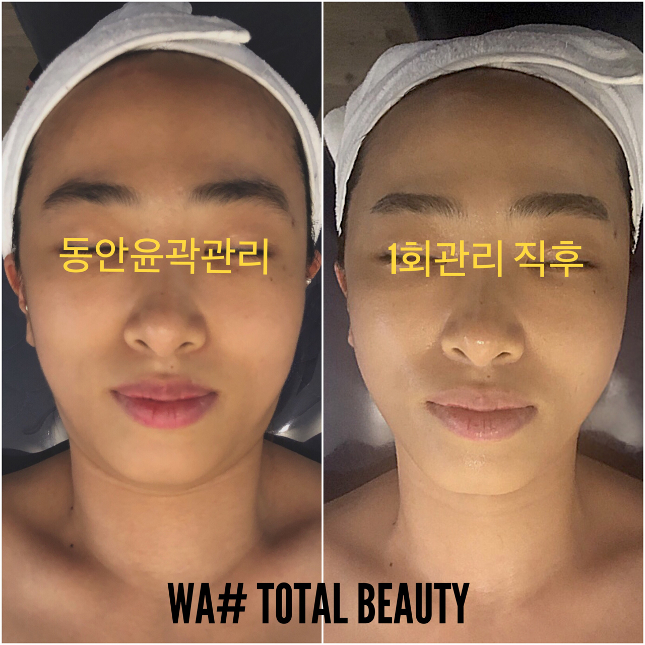 명덕역/작은얼굴만들기/물광피부/문제성피부전문/왁싱전문점
