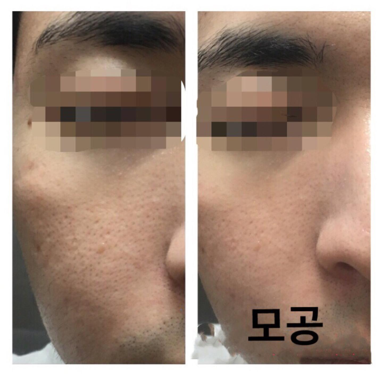 미세먼지 모공청소 & 리프팅 림프관리