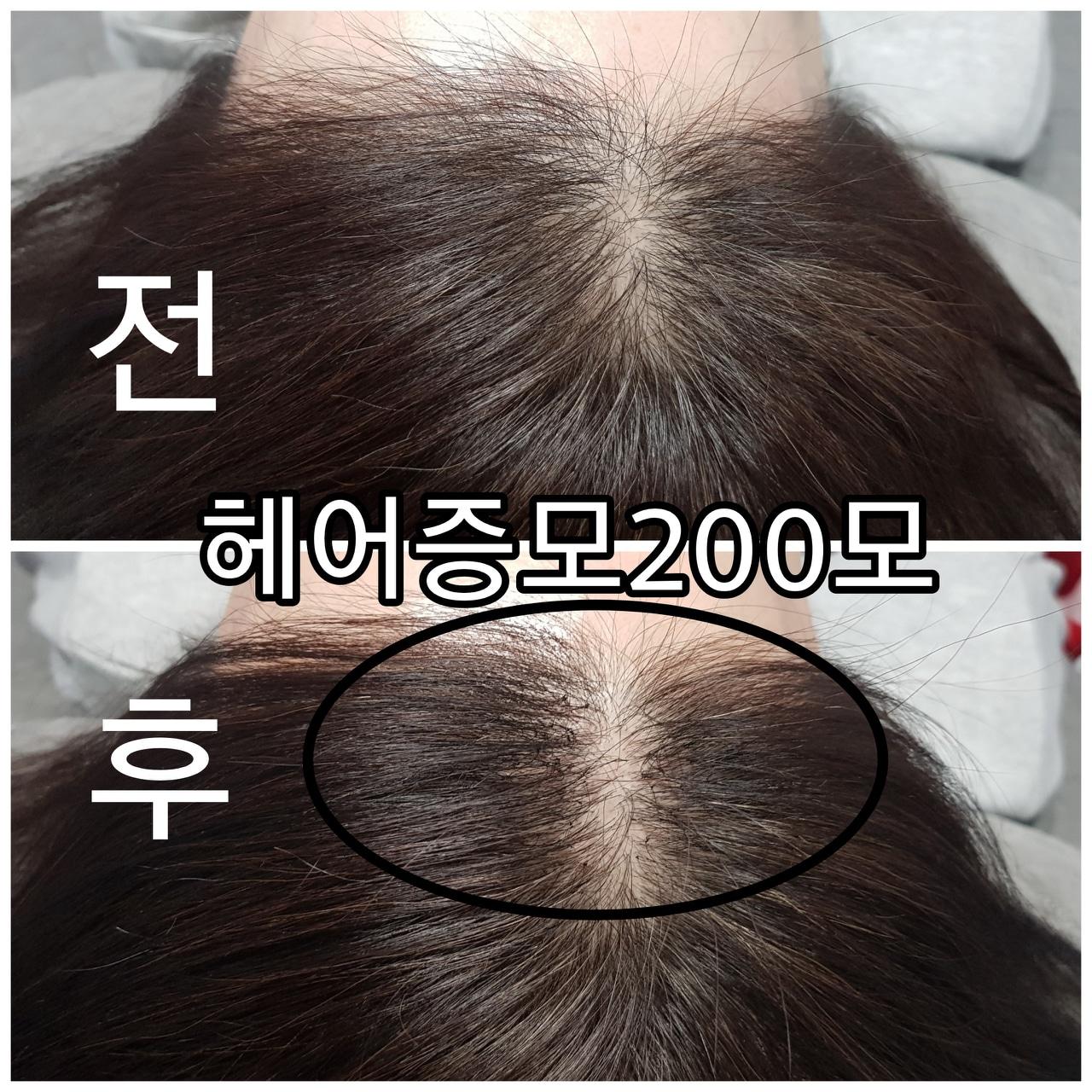 헤어증모로 탈모해결 풍성한 머리연출