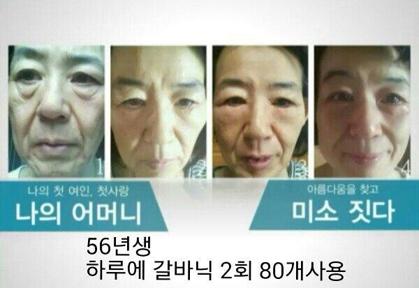 피부타임별 피부관리 2회
